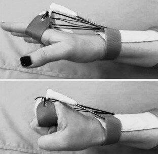 درمان آسیب عصب رادیال
