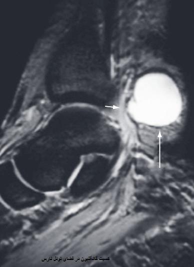 درمان جراحی سندروم تونل تارس