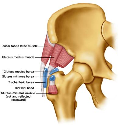 سندروم درد تروکانتر