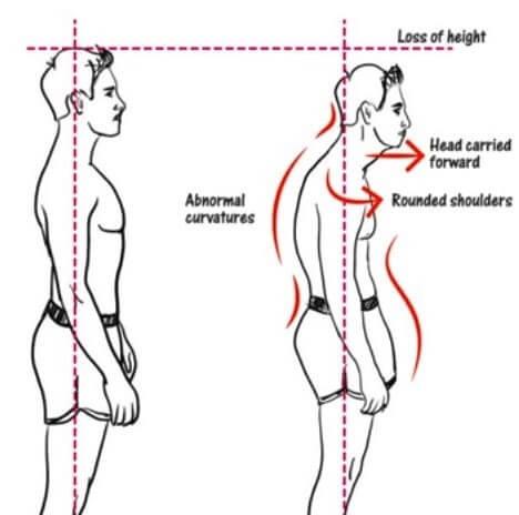 علل سندروم خروجی قفسه سینه