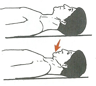 درمان گردن درد با ورزش
