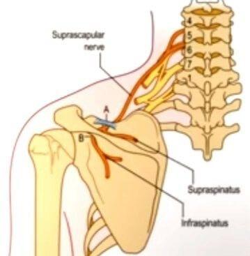 آسیب و گیرافتادگی عصب سوپرااسکاپولار در درد شانه