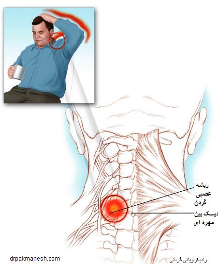 درد رادیکولار گردن