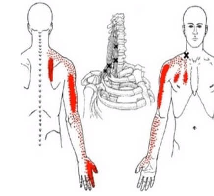 آرتروز شانه و ساییدگی مفصل شانه