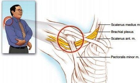 علائم ونشانه های سندروم خروجی قفسه توراکس
