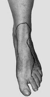 نروپاتی عصب پرونیال سطحی در مچ