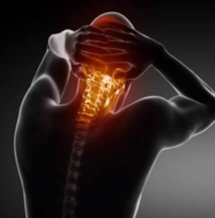 گردن درد چیست؟