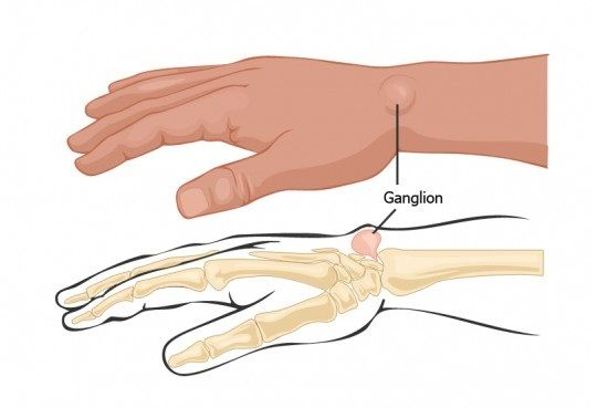 گانگلیون مچ دست